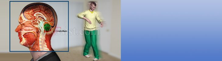 What Can Cause Ataxic Gait