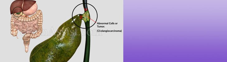 What Causes Cholangiocarcinoma
