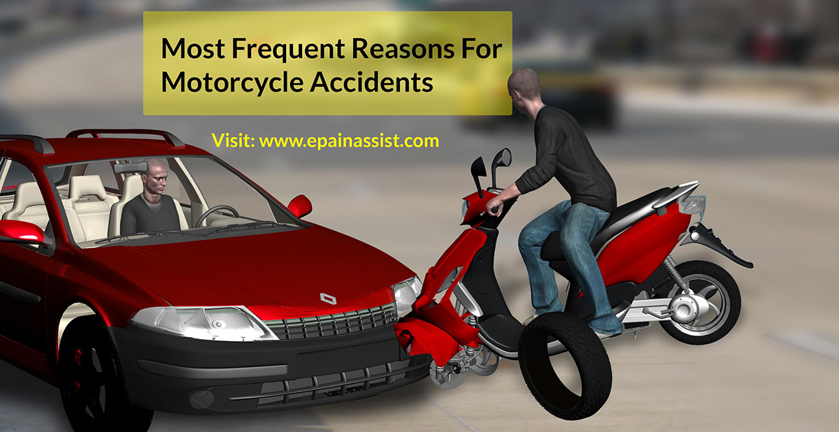 Motorcycle Accident: Causes And Prevention Tips