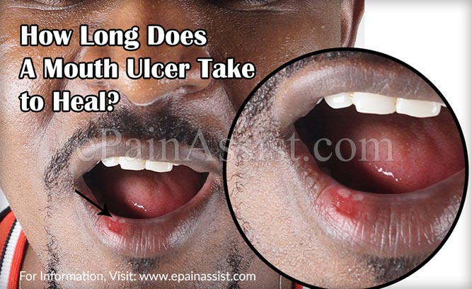 How Long Does A Mouth Ulcer Take to Heal?