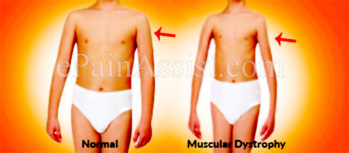 Duchenne's Muscular Dystrophy (DMD) or Muscular Dystrophy