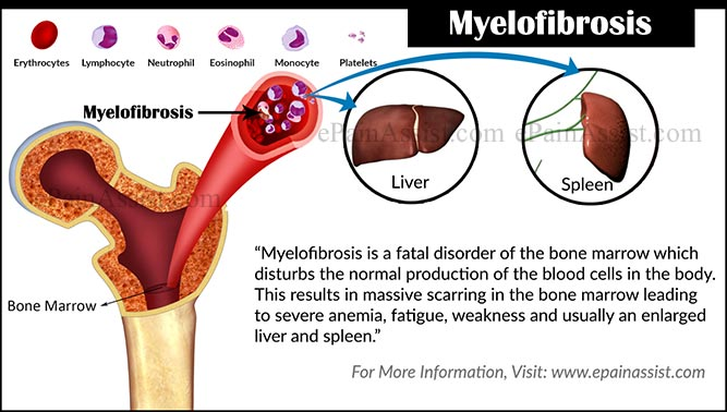 What is Myelofibrosis?