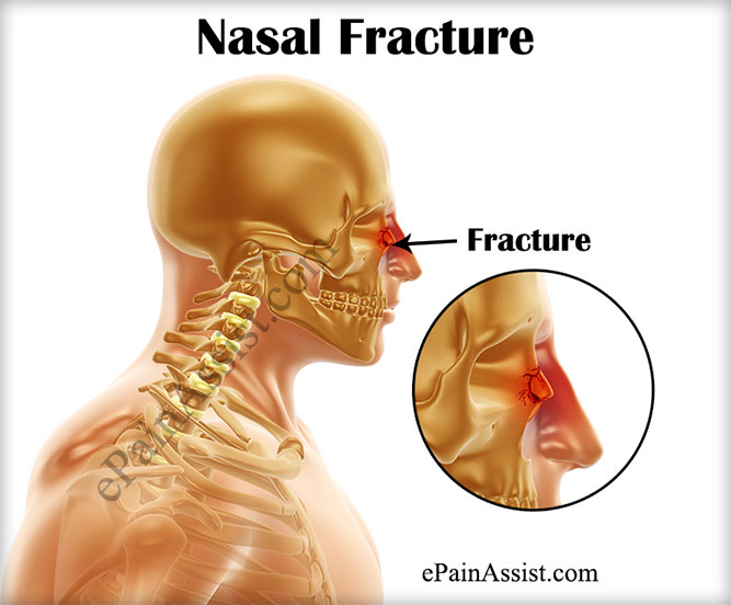 What is Nasal Fracture or Broken Nose?