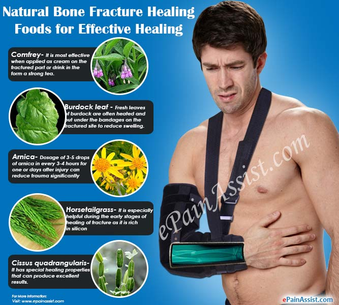 Natural Bone Fracture Healing Foods or Bone Healing Supplements for Effective Healing