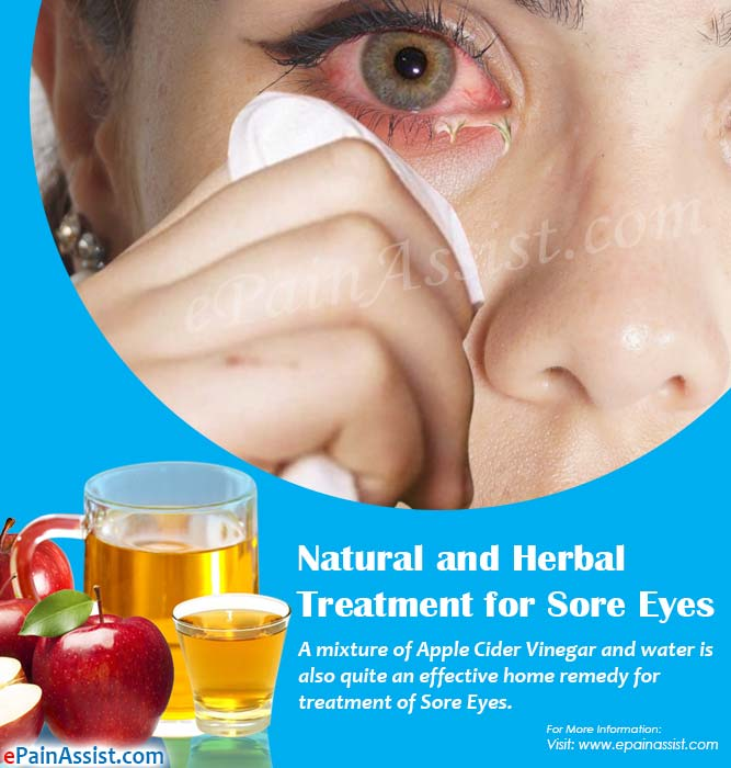 Natural and Herbal Treatment for Sore Eyes