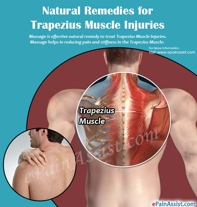remedies for trapezius muscle injuries, Muscles