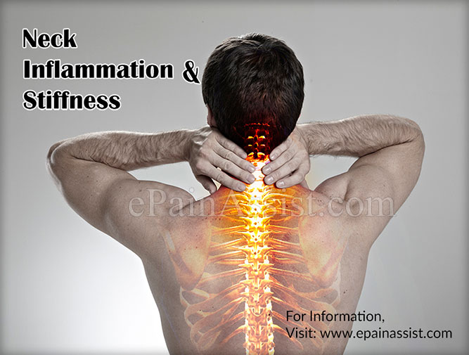 Neck Inflammation and Stiffness