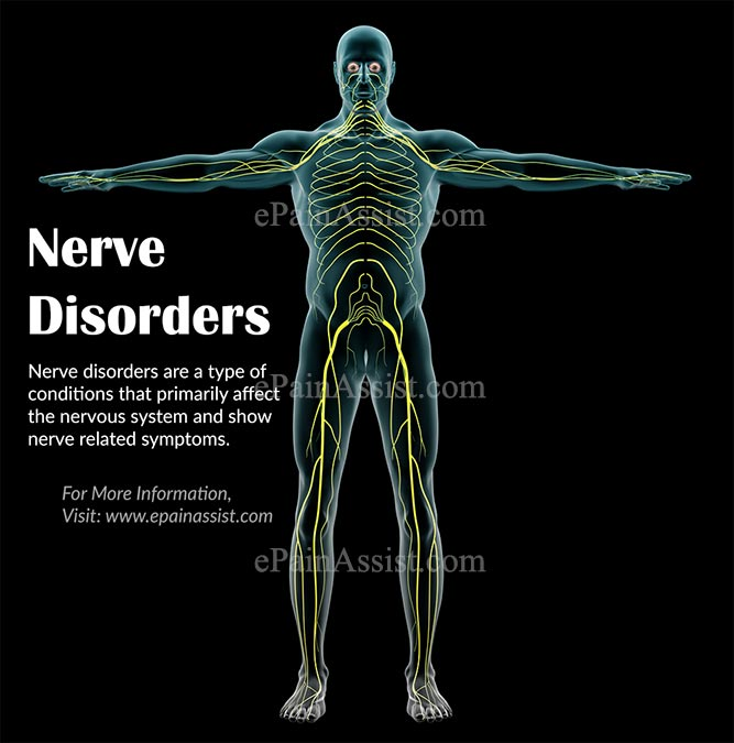 Nerve Disorders|Types|Causes|Symptoms|Treatment|Diagnosis