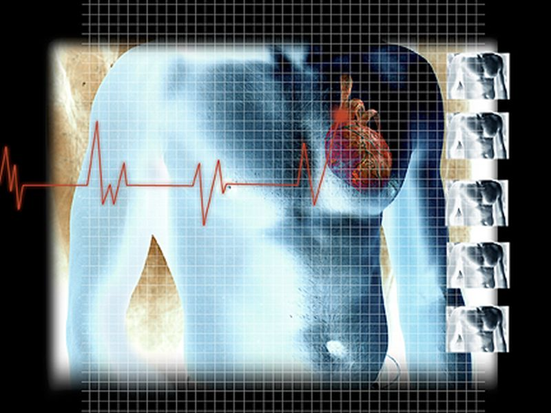 Study finds genes that boost risk for cardiovascular  trouble also up chances of having children.