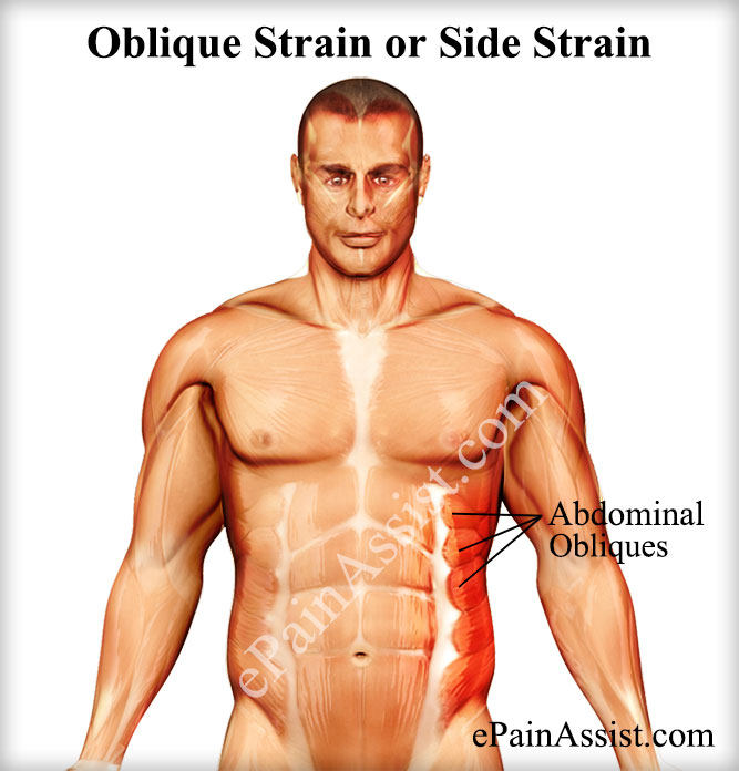 Oblique Strain or Side Strain