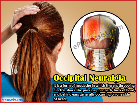 Occipital Neuralgia or C2 Neuralgia