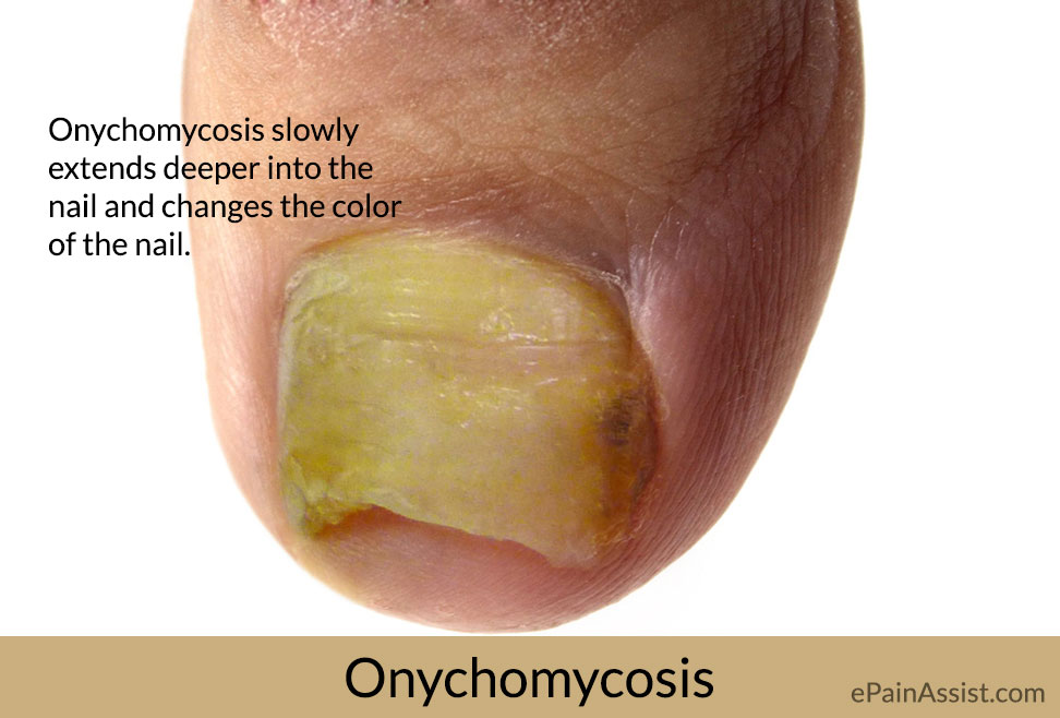 Onychomycosis: Causes, Symptoms, Treatment, Home Remedies, Prevention, Diagnosis, Signs