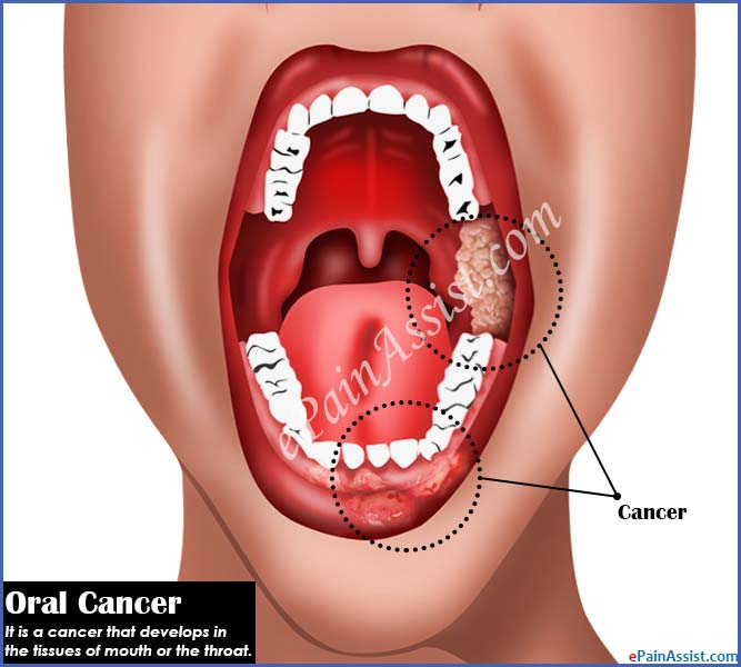 An Overview on Oral Cancer