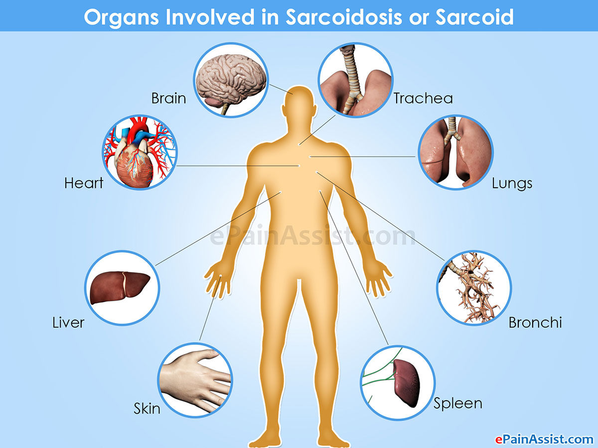 Organs Involved in Sarcoidosis or Sarcoid