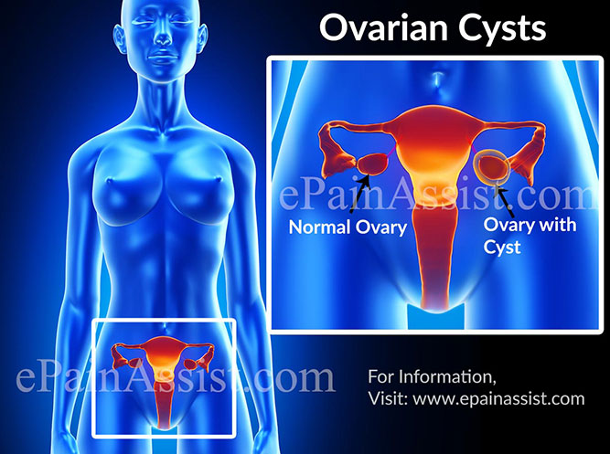 What is Ovarian Cysts?