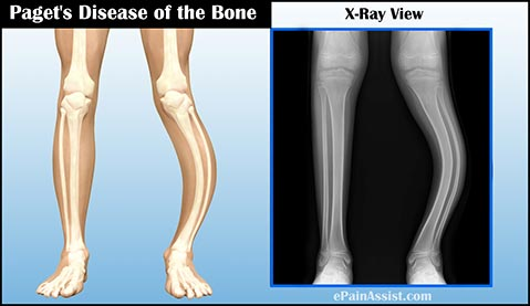 Paget's Disease of the Bone: Causes, Facts, Symptoms, Diagnosis, Treatment, Prognosis