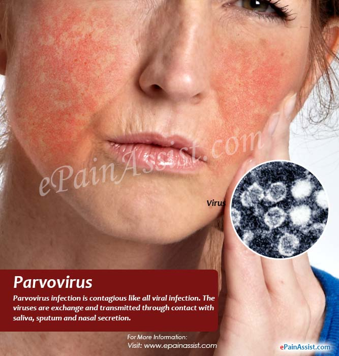 effects virus after Adult parvo