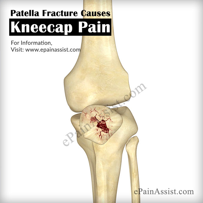 Kneecap Pain|Causes|Symptoms|Treatment|Recovery Period|Braces|Home ...