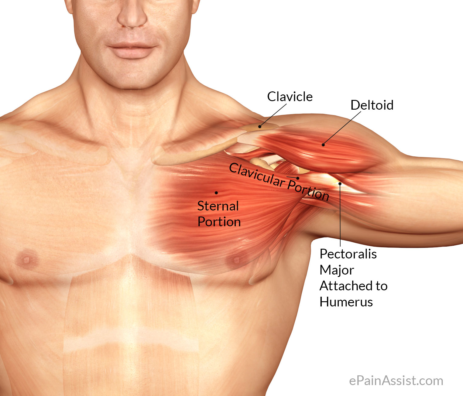 pectoralis major inflammation: treatment, pt, causes, symptoms, Human Body