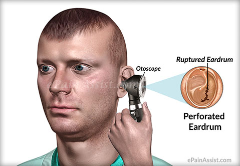 What is Perforated Eardrum?