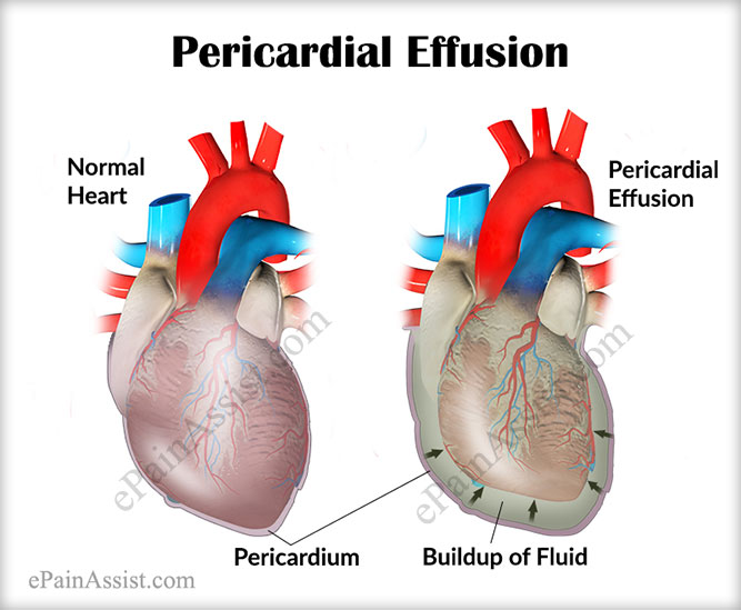 What Is Pericardial Effusion?