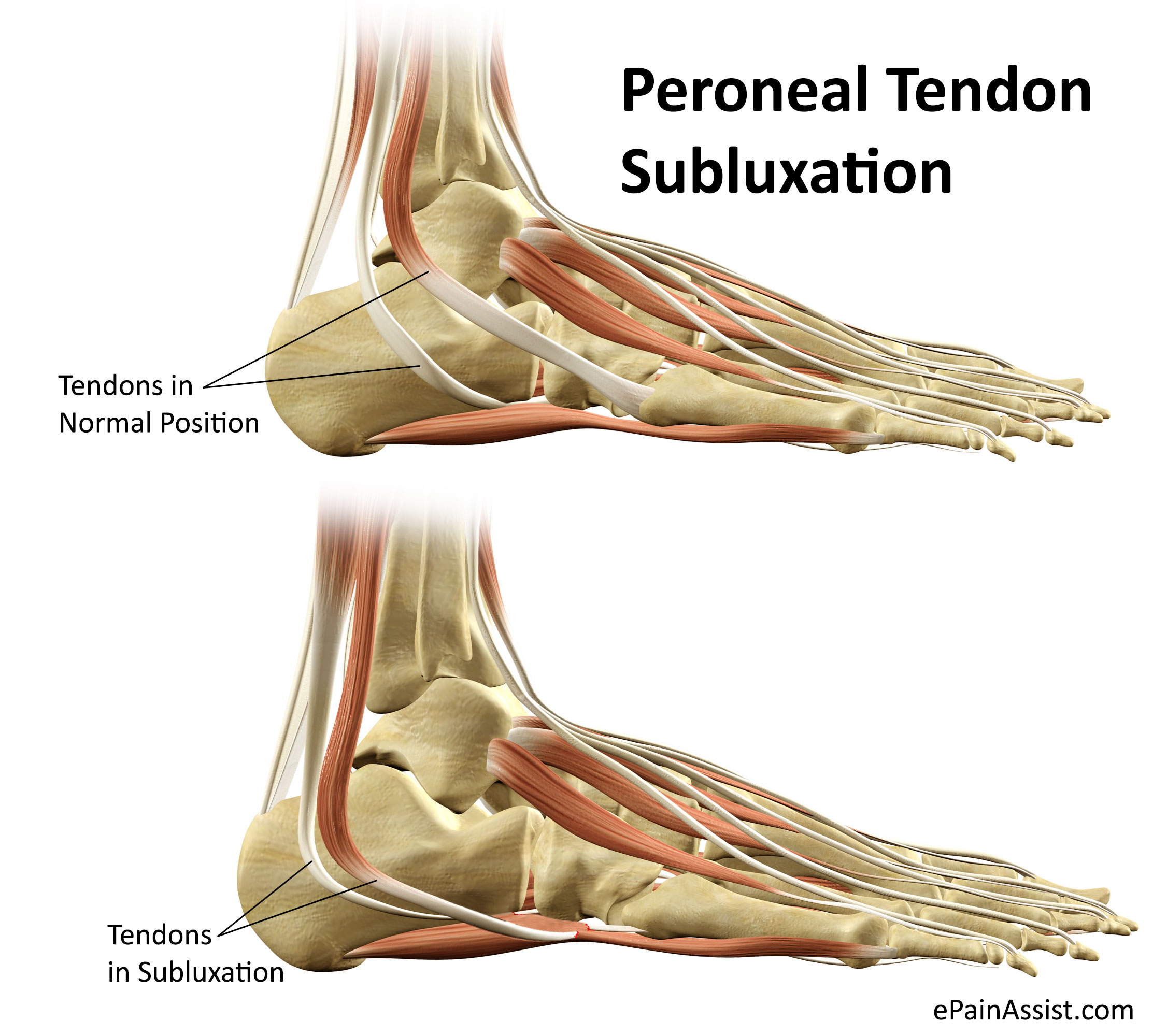 Peroneal Tendon Subluxation or Dislocation