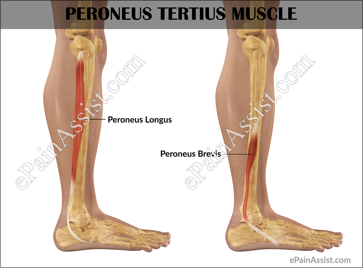 Peroneus Tertius Strain|Causes|Symptoms|Treatment|Recovery