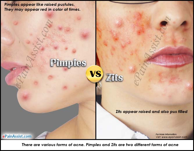 Pimples Vs Zits Differences Worth Knowing