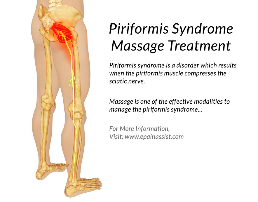 Piriformis Syndrome Massage Treatment Piriformis Muscle Massage