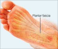 Heel Pain Due To Plantar Fasciitis