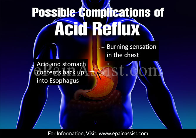 Possible Complications of Acid Reflux Disease