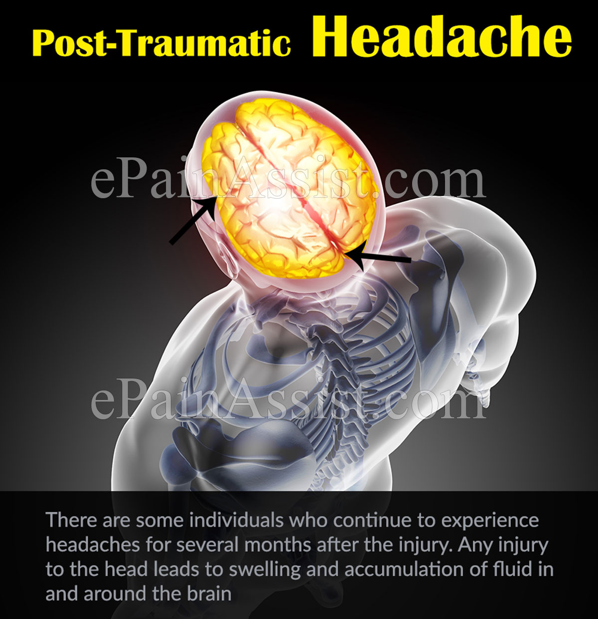 Post-Traumatic Headache: Causes, Symptoms, Treatment, Lifestyle Modifications