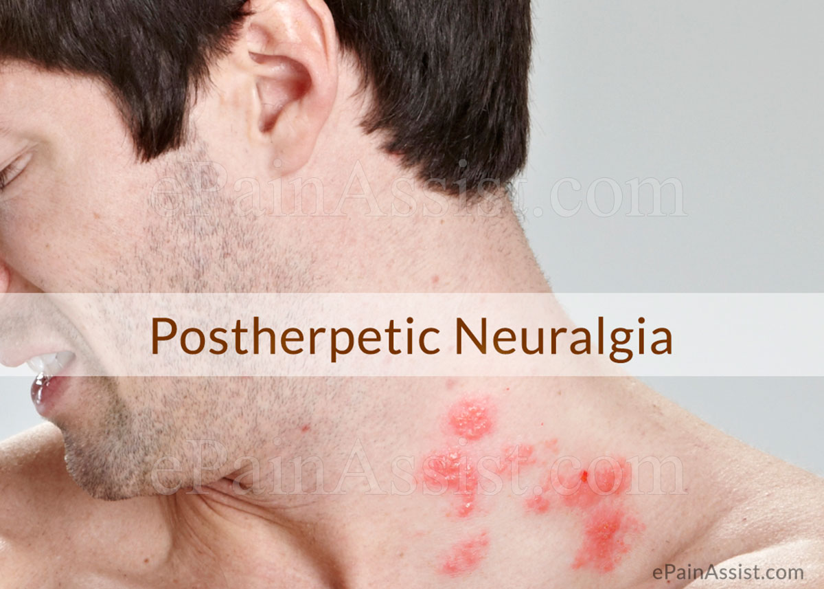 Postherpetic Neuralgia: Causes, Risk Factors, Signs, Symptoms, Treatment, Investigations