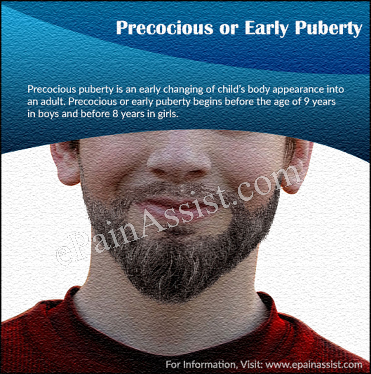 Precocious or Early Puberty