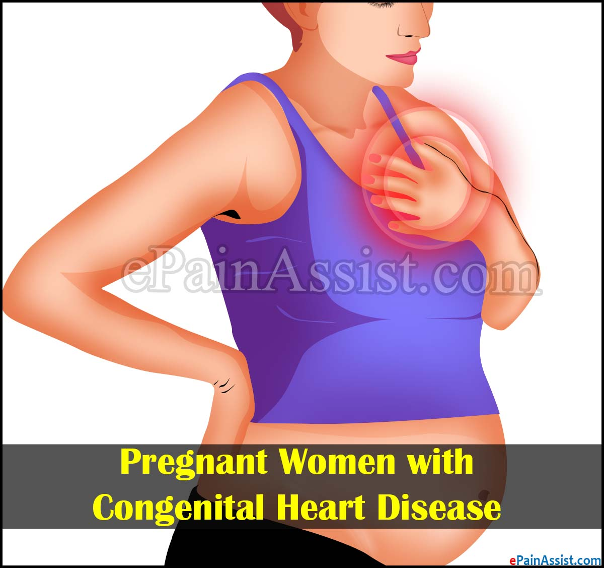 Pregnant Women with Congenital Heart Disease