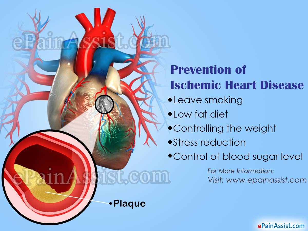Prevention of Ischemic Heart Disease
