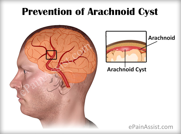 arachnoid cyst|prevention|prognosis|coping tips, Skeleton