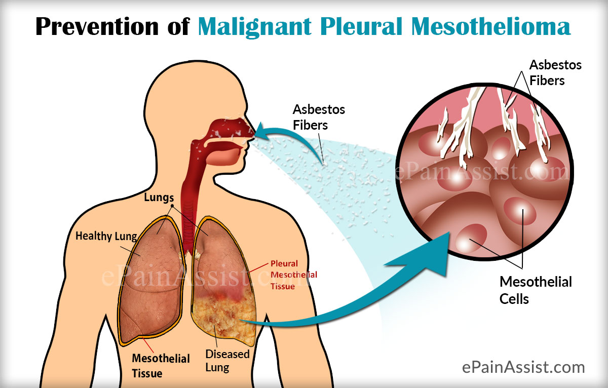 Prevention of Malignant Pleural Mesothelioma