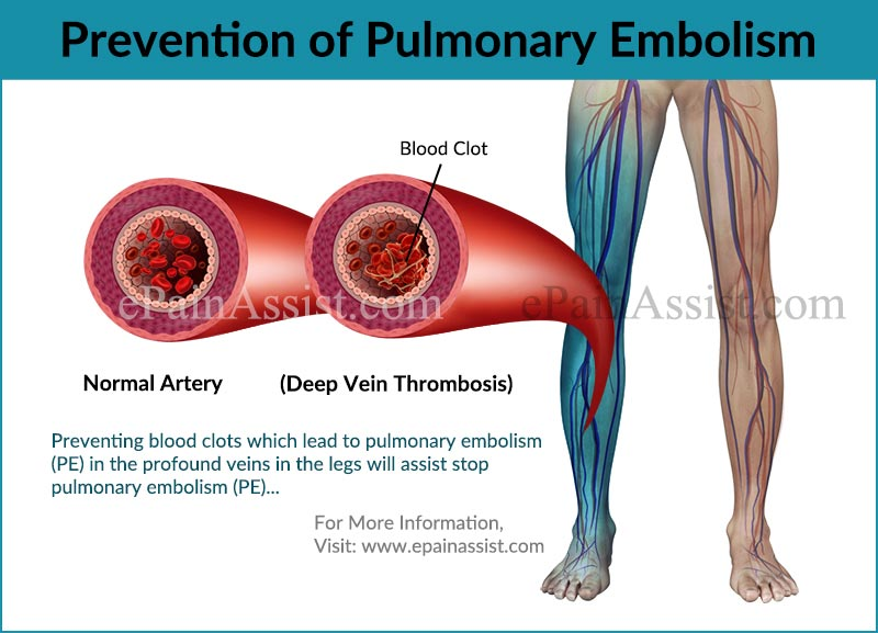 prognosis & prevention of pulmonary embolism, Skeleton