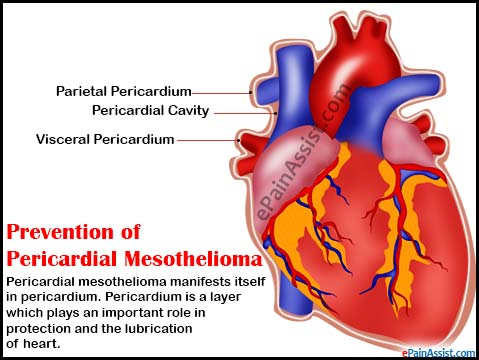 Pericardial Mesothelioma: Prevention, Disability Benefits, Prognosis