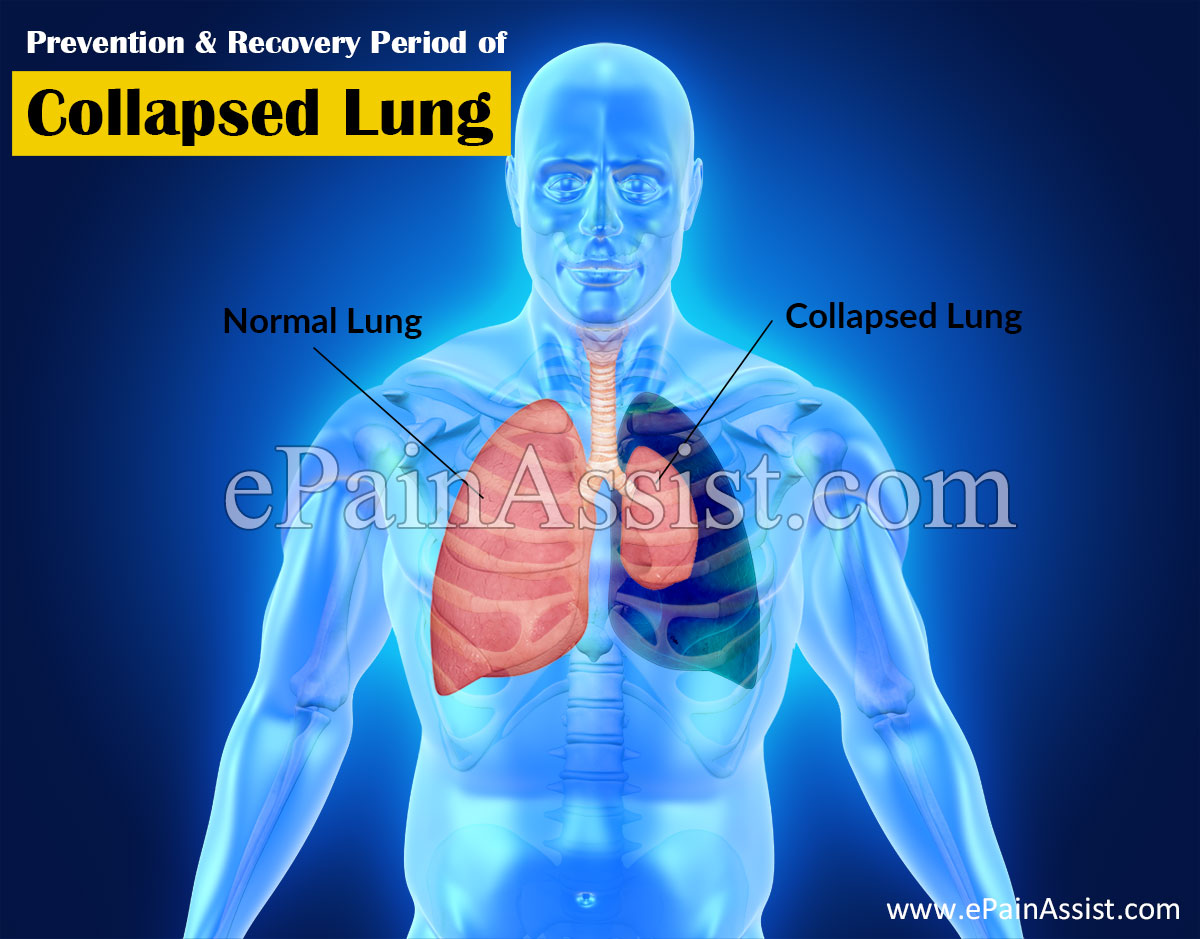 Prevention & Recovery Period of Collapsed Lung or Pneumothorax