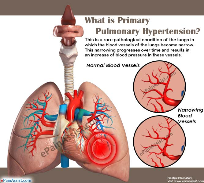 treatment of pulmonary hypertension with the 5 days ago  depending on the severity of ph, heart or lung transplant may also be an  it is  essential that you talk to your own doctor about what treatment.