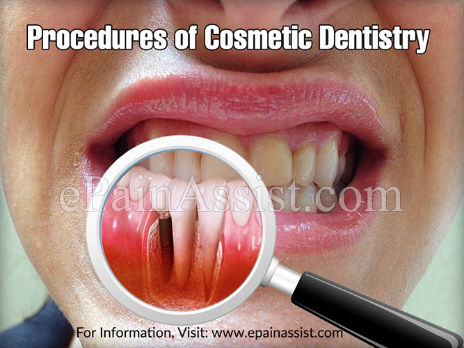 Procedures of Cosmetic Dentistry