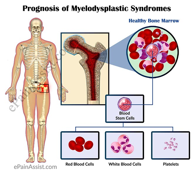 Prognosis of Myelodysplastic Syndromes or MDS