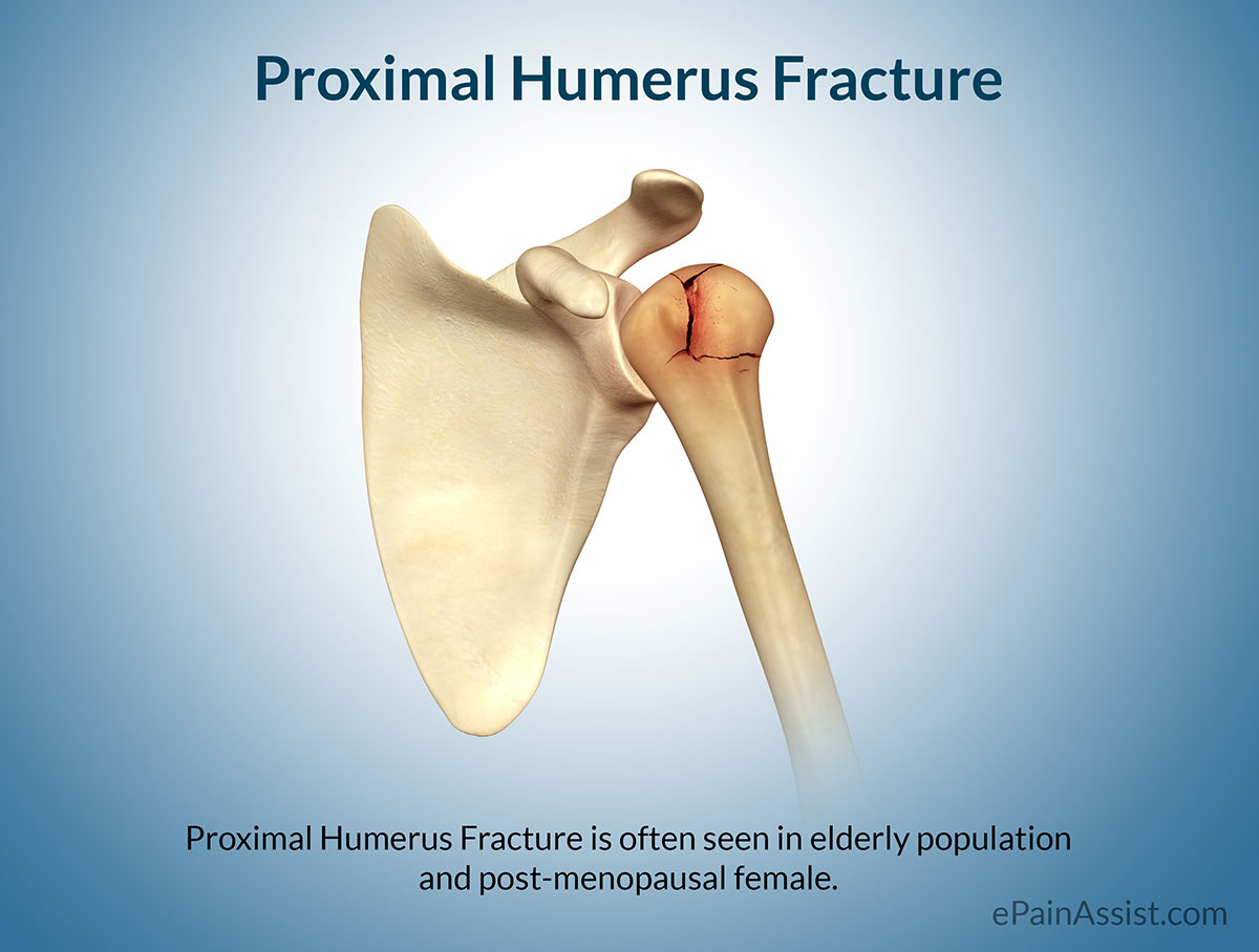 Proximal Humerus Fracture Treatment Exercises Causes Symptoms