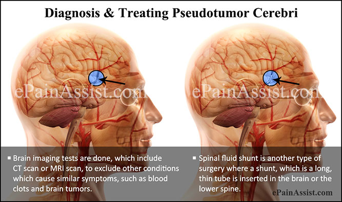What is Pseudotumor Cerebri