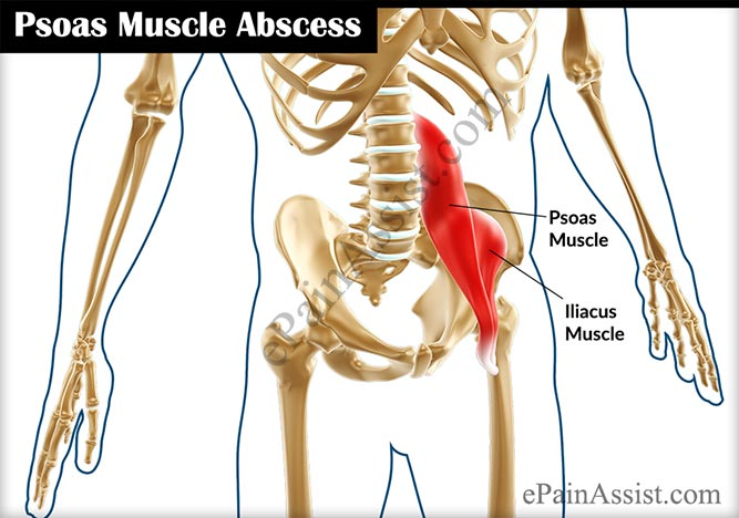 what is psoas muscle abscess & how is it treated?, Human Body