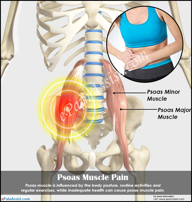 psoas muscle pain & techniques to release psoas muscle, Human Body