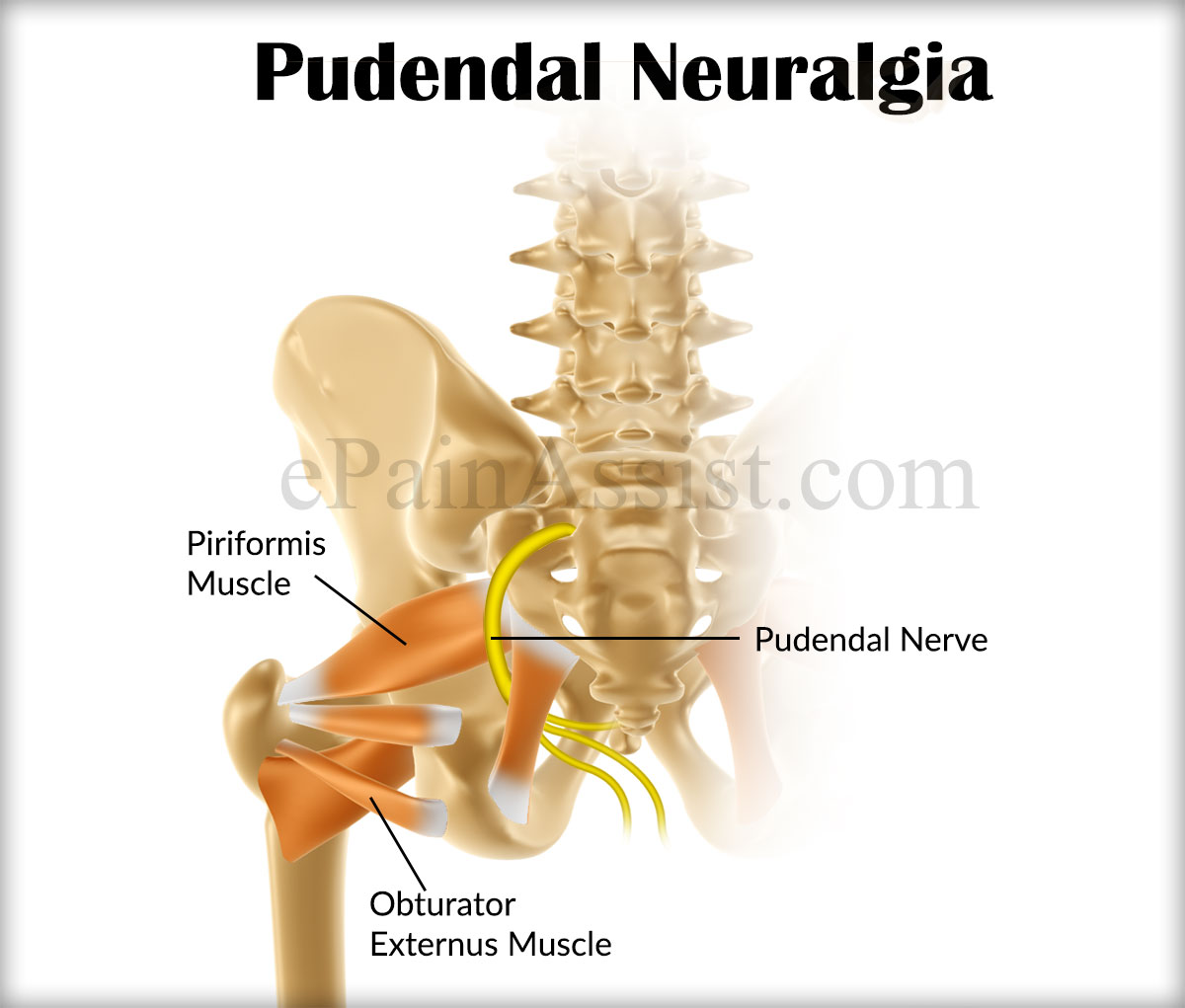 pudendal neuralgia|causes|symptoms|treatment, Skeleton