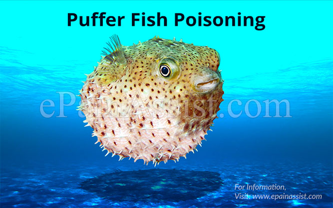 Striped belly puffer fish poisonous hot porno for Puffer fish images